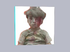 Omran Daqneesh In Analog 3-D by Astronaut1